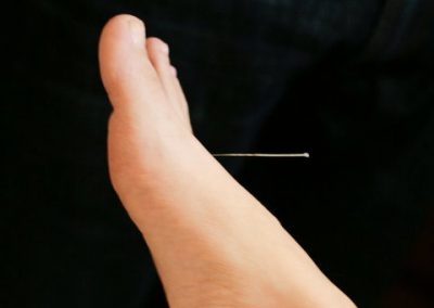 Needle_foot