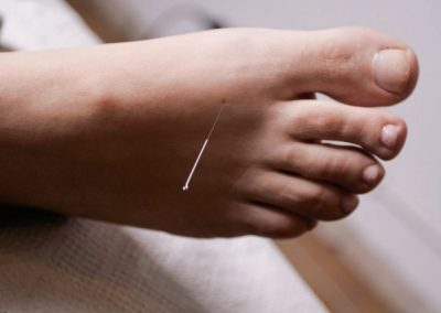 Needle_foot1